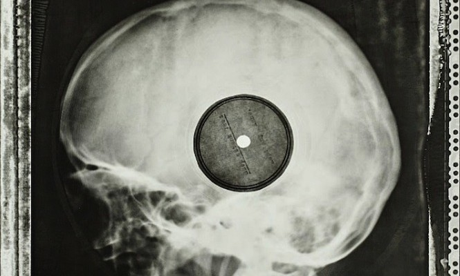 Incredible images of Soviet-era bootleg records pressed on discarded x-rays