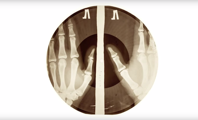 the-story-of-x-ray-audio-the-soviet-bootleg-records-cut-onto-discarded-x-rays