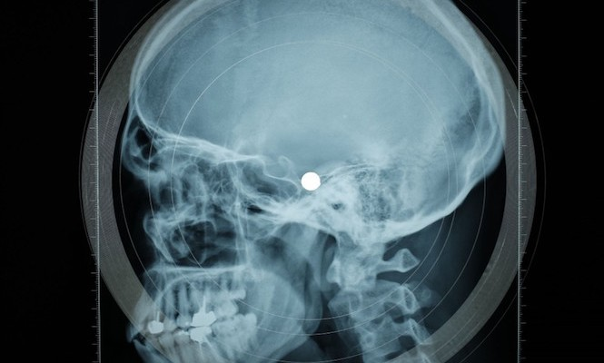 This record label is releasing music on recycled medical X-rays again